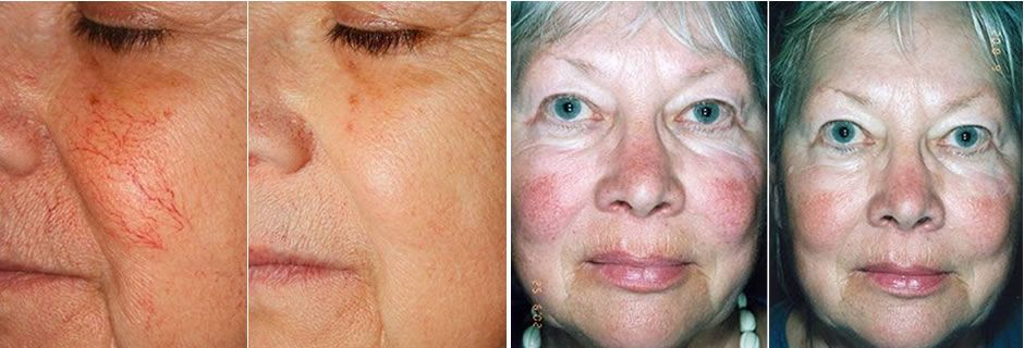 ipl for thread veins on face